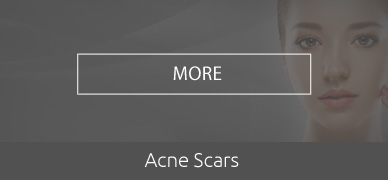 Acne-Scars-HOVER