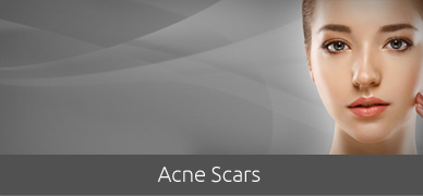 Acne-Scars