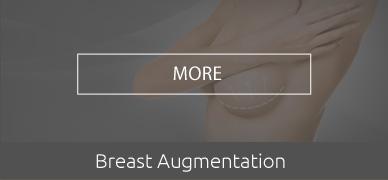 BREAST-AUGMENTATION-hover