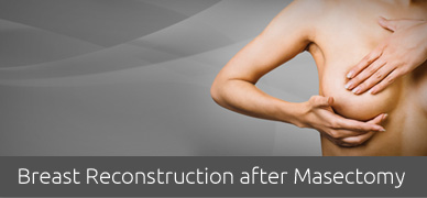BREAST-RECONSTRUCTION-AFTER-MASECTOMY