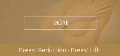 Breast-Reduction-Breast-Lift-hover