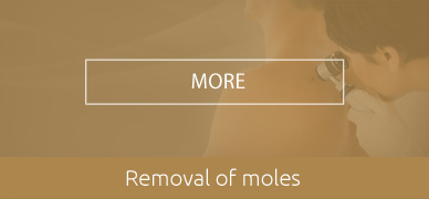 Removal-of-moles-HOVER
