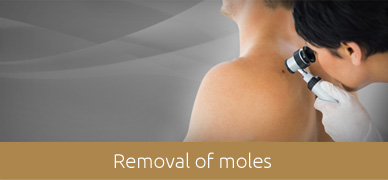 Removal-of-moles