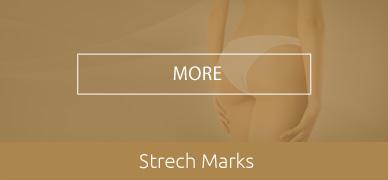Strech-Marks-HOVER