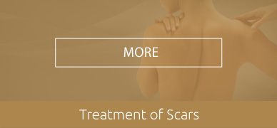 Treatment-of-Scars-HOVER