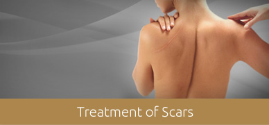 Treatment-of-Scars