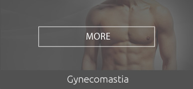 gynecomastia-HOVER