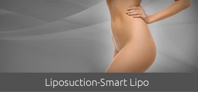 liposuction-smart-lipo