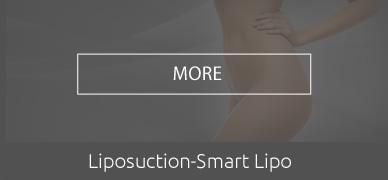 liposuction-smart-lipo-hover