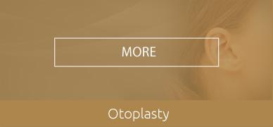 Otoplasty-hover