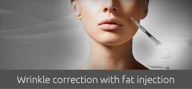 Wrinkle-correction-with-fat-injection