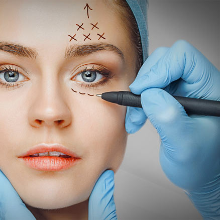 blefaroplasty-eyelid-surgery